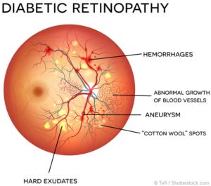 Ilustração de um olho com Retinopatia