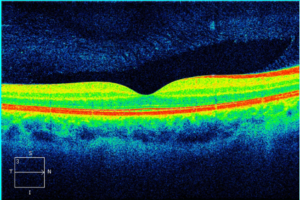 Pelo OCT é capaz de verificar a qualidade da mácula do paciente