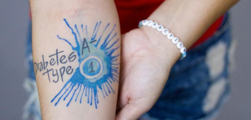 Tatuagem em diabéticos Clube do Diabetes